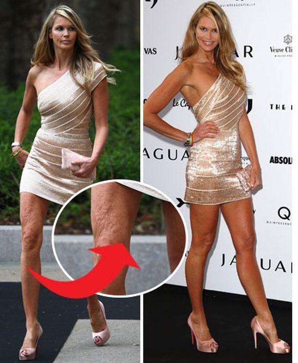 Ellenin oikeassa reidessä oli nähtävissä luonnollisia ikääntymisen merkkejä, mutta se ei estänyt entistä mallia pukeutumasta minimekkoon.