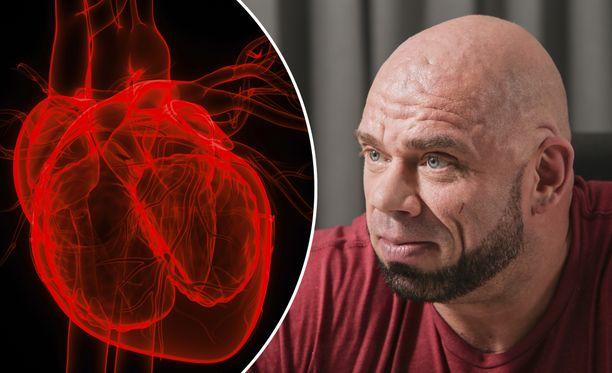 Jari Mentulalla on sydämen vajaatoiminta.