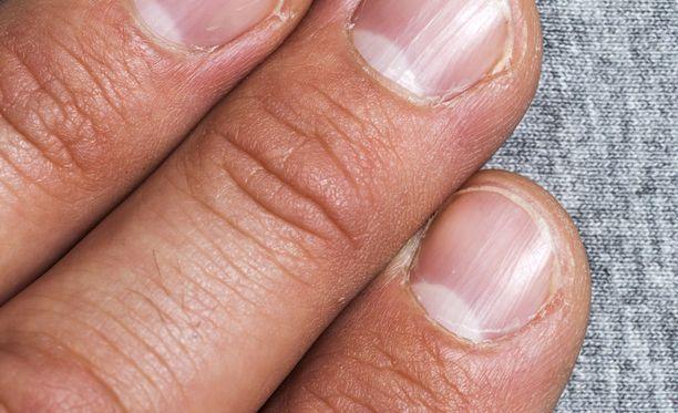 Ihoinfektio on yleisin tapa saada verenmyrkytys.