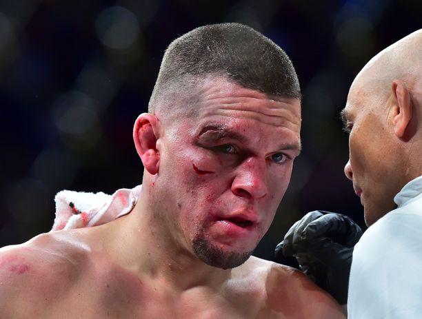 Nate Diaz sai syviä haavoja kasvoihinsa.
