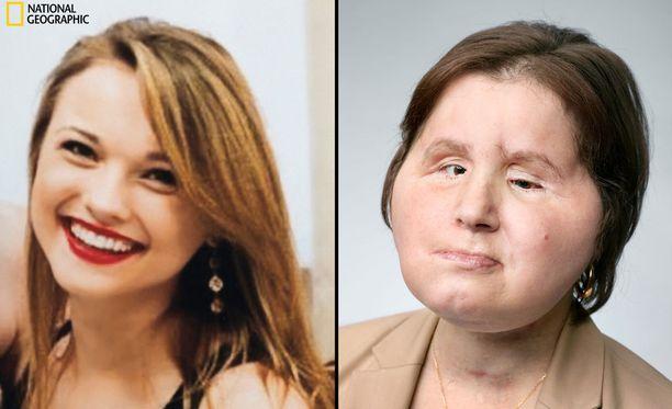 Katie ennen ja nyt.