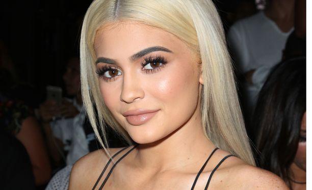 Kylie Jenner on ottanut huulitäytettä.