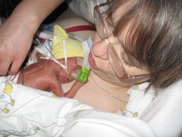 Syntyessään Jonni painoi 725 grammaa.