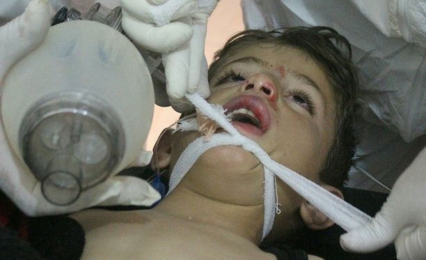 Kaasuiskussa haavoittunutta lasta hoidettiin kenttäsairaalassa Idlibissä.