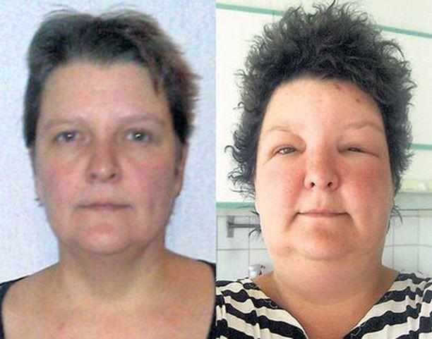 Kuvista näkyy, mitä allerginen reaktio teki Stiina Mickelssonin ulkonäölle.
