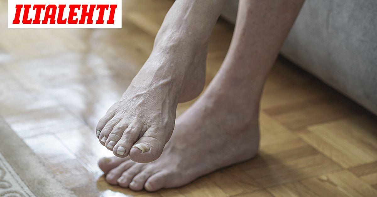 Turvottaako jalkoja? 5 sairautta, jotka voivat selittää oireen