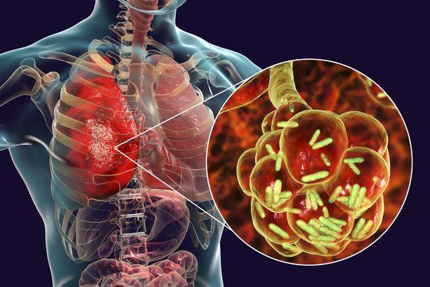 Legionella-bakteerit voivat aiheuttaa keuhkokuumetta erityisesti iäkkäillä ja niillä, joiden immuunipuolustus on heikentynyt.