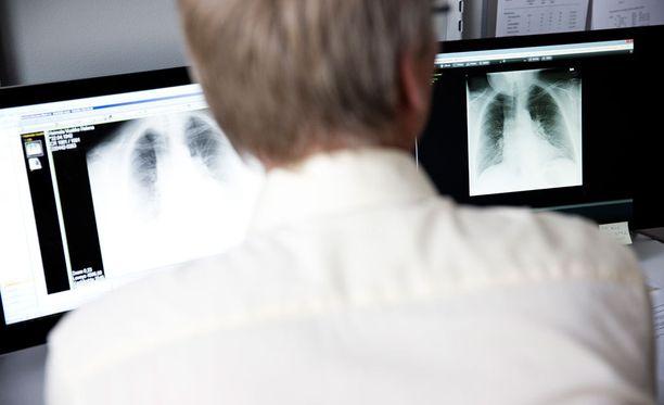 Muun muassa röntgen- ja syöpähoitajat sekä syöpälääkärit ovat saaneet säteilyaltistuksen takia vuosittain jopa kymmenen päivää ylimääräistä lomaa.