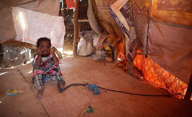Pieni tyttö itki pakolaislerillä Qardhossa Somaliassa maaliskuussa. Äiti oli sitonut tytön kiinni, jotta tämä pysyisi turvassa perheen suojapaikan sisällä.