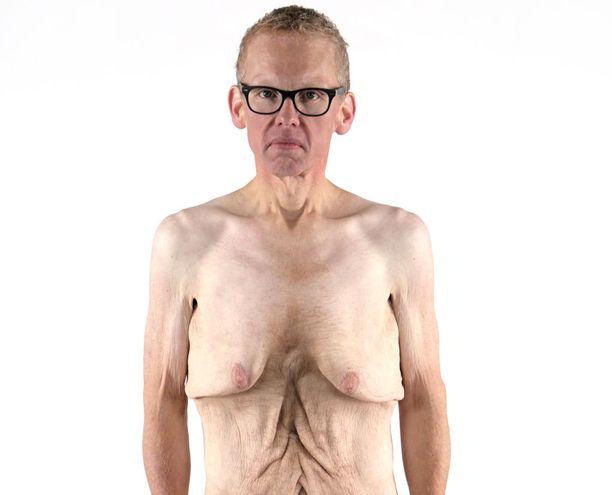 BJ sanoo näyttävänsä roikkuvan ihon vuoksi alipainoiselta, vaikka hän on normaalipainoinen.
