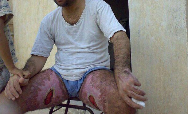Kuva on otettu Irakissa pian sen jälkeen, kun Haitham joutui polttopulloiskun kohteeksi.