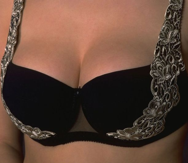 Nainen salakuljetti rinnoissaan kokaiinia. Kuva ei liity tapaukseen.