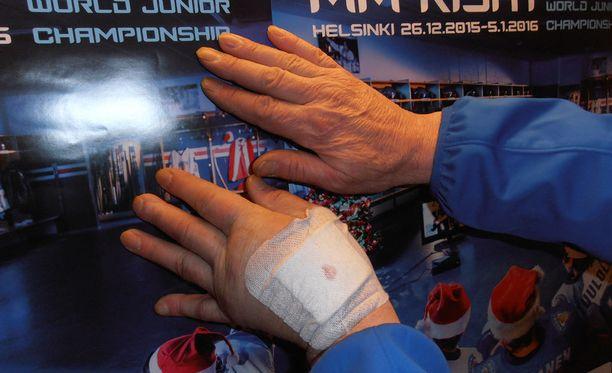 Markku Puhakaisen vasen käsi on selvästi eri kunnossa kuin oikea.