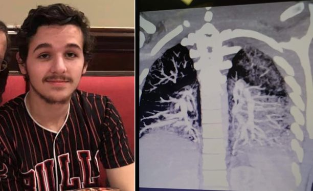 Anthony Mayo on sairaalahoidossa. Oikealla kuva hänen keuhkoistaan.