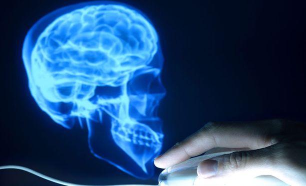 Aivokuvaus voi auttaa selvittämään Alzheimer-riskiä.