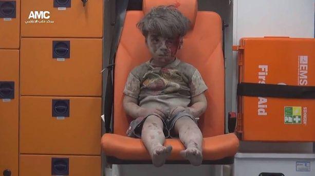 Kuva ambulanssissa istuvasta Omranista levisi nopeasti ympäri maailmaa tällä viikolla.