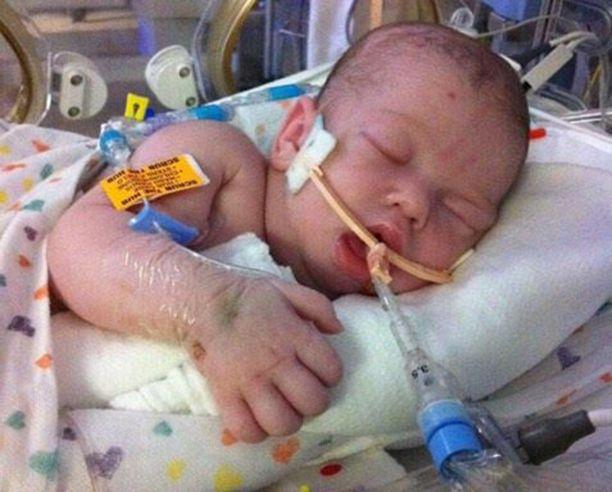 Landon pidettiin hengissä 15 päivää. Hänen saamansa aivovamma oli kuitenkin liian vakava.