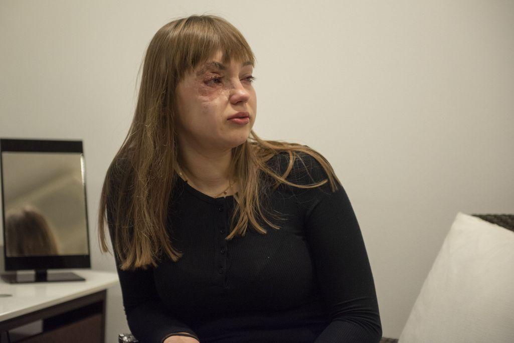 Latvialainen Ance on käynyt läpi suuren määrän leikkauksia, kun hänen näkökykyään uhannutta luomea on poistettu.