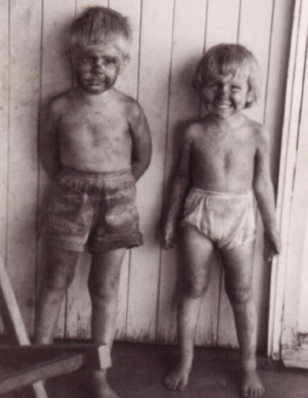 Suuri osa kuolleista on ollut kaivostyöläisten lapsia, jota elivät asbestipölyn keskellä.