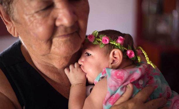 Neljän kuukauden ikäinen brasilialaistyttö altistui zikavirukselle raskausaikana.