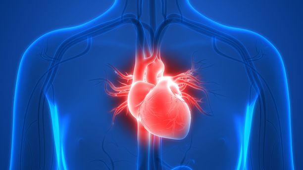 Eteisvärinä voi omalta osaltaan saada aikaan hyytymiä sydämeen ja aivoihin.