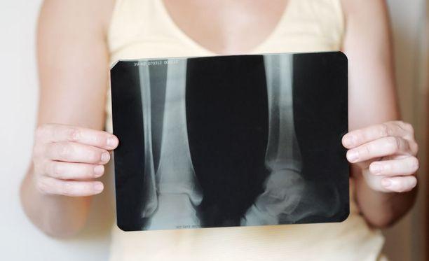 Harva tietÀÀ, ettÀ liiallinen suolan saanti aiheuttaa elimistössÀ myös kalsiumin katoamista ja siten osteoporoosia eli luukatoa.