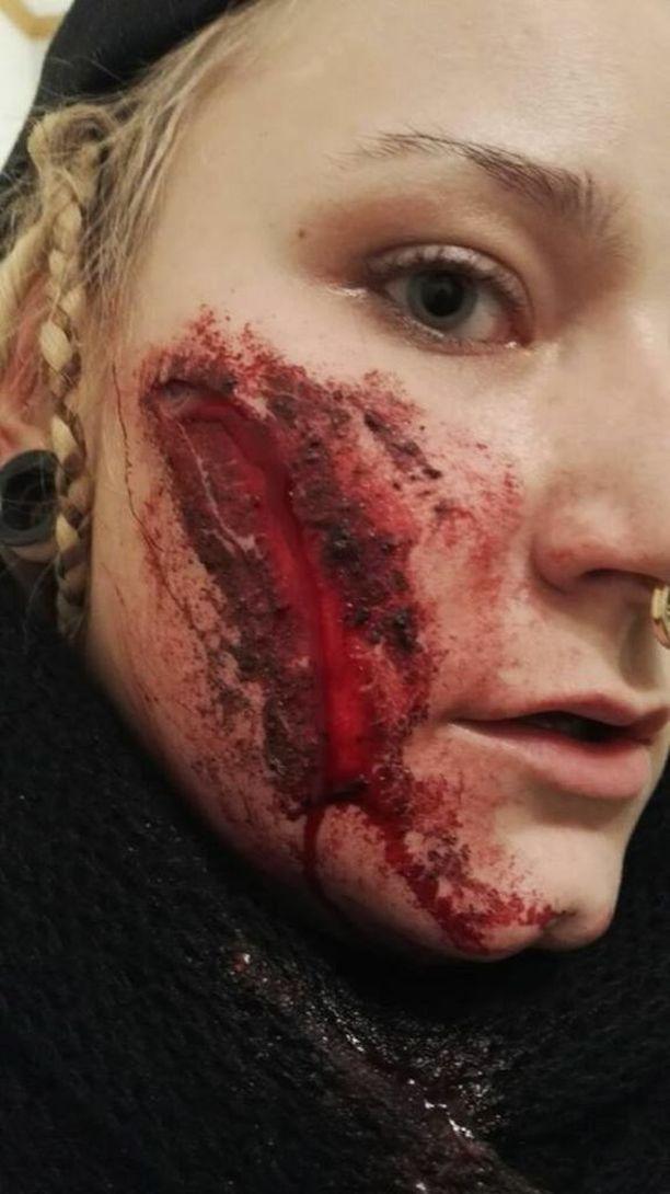 Sini Savolalle tuli kipeä haava poskeen kaatumisesta.