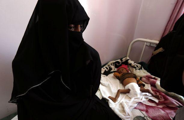 Nälänhätä uhkaa viittä miljoonaa lasta Jemenissä. Sodasta on tulossa sota lapsia vastaan.
