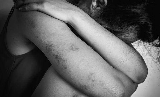 Joitain perhesurmia edelsi väkivaltatilanteet, kuten pahoinpitely tai kuristaminen. Toisaalta tutkijat uskovat, että mikä tahansa riittävä ärsyke, joka uhkaa miehen kontrollin menettämistä kumppanistaan, voi johtaa surmatekoon. Kuvituskuva.