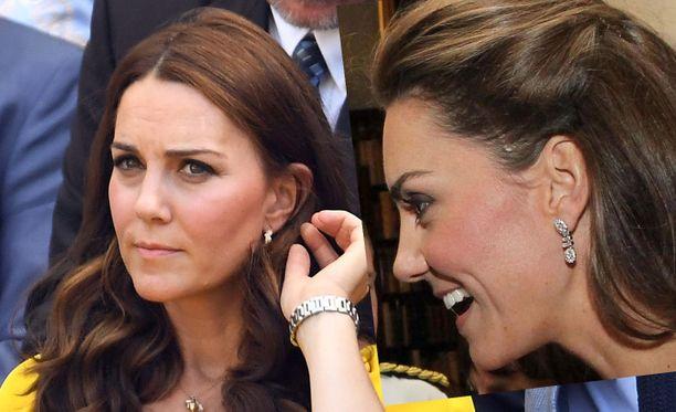 Herttuatar Catherine piilottaa arpensa usein hiusten alle. Oikealla olevassa kuvassa ohimolla näkyy paksu arpi.