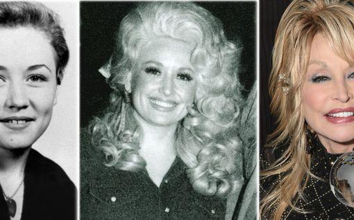 Dolly Parton täytti 75 vuotta – raju taistelu ikääntymistä vastaan: Tuoreissa kuvissa ei ryppyäkään