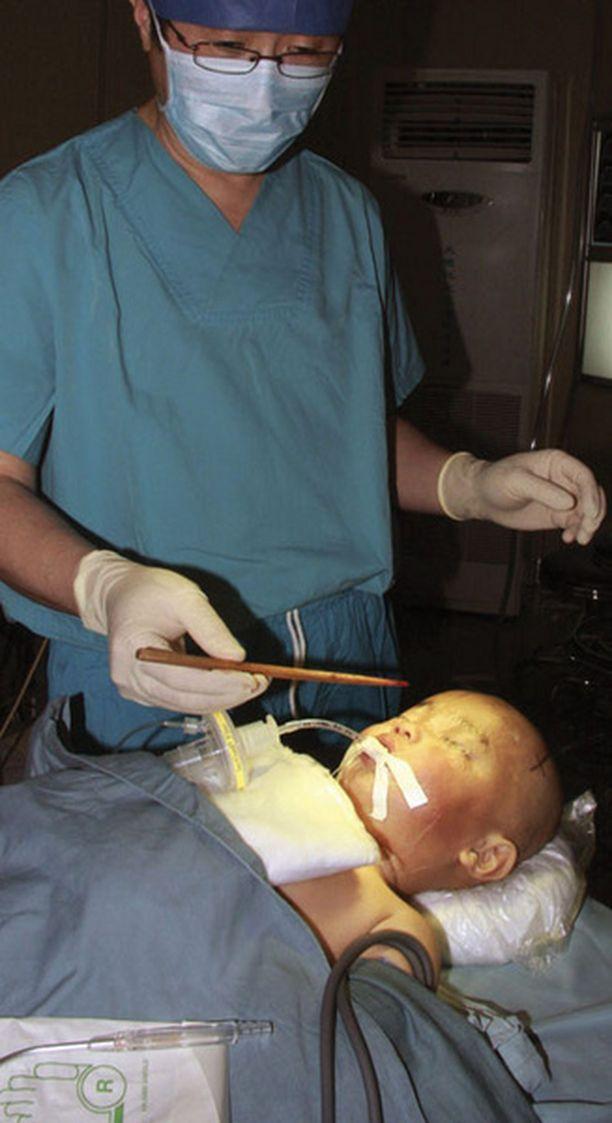 Kokenut neurokirurgi sai 4 millimetrin syvyyteen aivoihin joutuneen syömäpuikon pois turvallisesti.