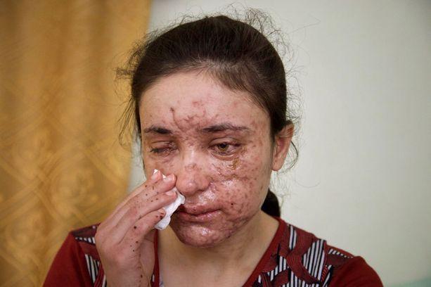 Lamiya menetti näkönsä ja sai elinikäiset arvet, mutta pitää itseään onnekkaana koska hän ei ole enää Isisin orja.