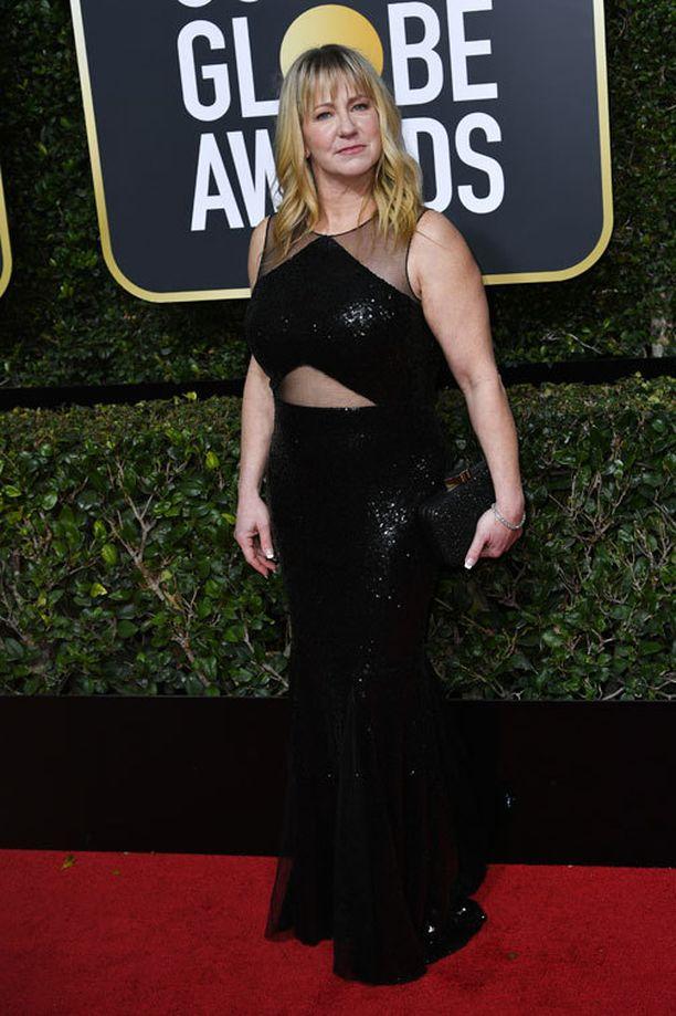 Tonya Harding osallistui Golden Globe -gaalaan elämästään kertovan I, Tonya -elokuvan merkeissä.