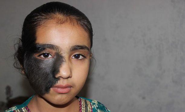 10-vuotias Mudasira Akbar joutuu jatkuvasti koulukavereidensa kiusaamaksi syntymämerkkinsä vuoksi.