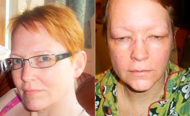 ENNEN Tarja, 47, normaalisti. JÄLKEEN Tarja, 47, tammikuussa 2011 allergisen reaktion jälkeen.