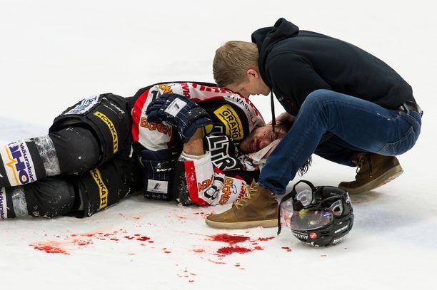 JYPin Michel Miklikin loukkaantumisen aiheuttanut taklaus vuonna 2017 oli Liigan mukaan puhdas. Miklik sai aivotärähdyksen, ja hänen nenänsä ja solisluunsa murtuivat.