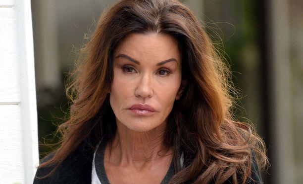 Janice Dickinsonin on arveltu käyneen lukuisissa kauneusleikkauksissa.