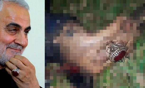 Kenraalin repeytynyt ruumis pystyttiin tunnistamaan hänen pitämästään sormuksesta.