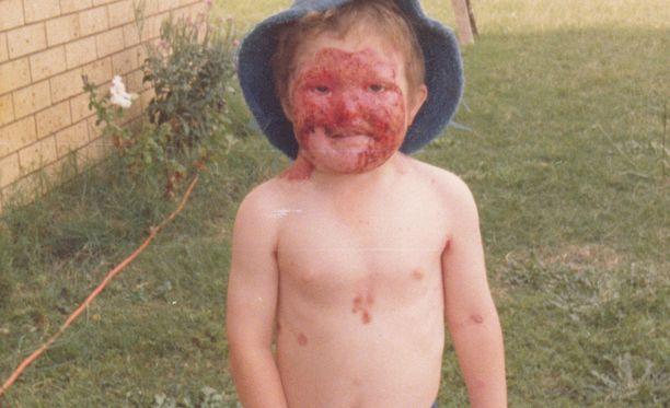 Dean Clifford joutui jo lapsena kärsimään tuijotuksesta, mutta ei ole enää antanut asian häiritä.