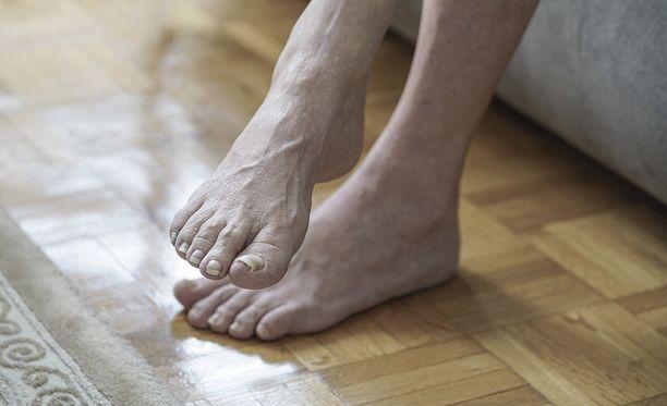 Jalkojen turvotus on ikävä riesa. Jos oireet ovat hyvin voimakkaat ja yllättävät, kannattaa hakea apua.