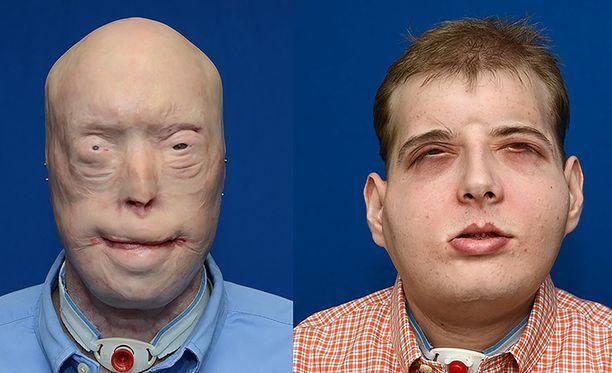 Hardisonilla on jo kolmannet kasvot. Ensimmäisten kanssa hän syntyi, toiset hänellä oli onnettomuuden jälkeen ja nyt kolmannet leikkauksen jälkeen.