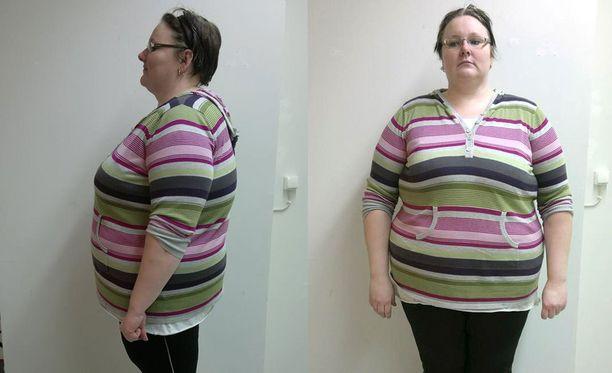 Minna painoi 155 kiloa maaliskuussa 2014. Olo oli raskas ja energia vähissä.