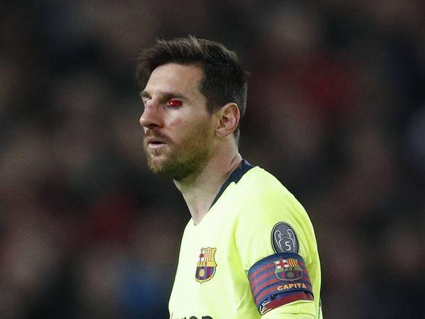 Lionel Messin nassu otti osumaa ManU-ottelussa.