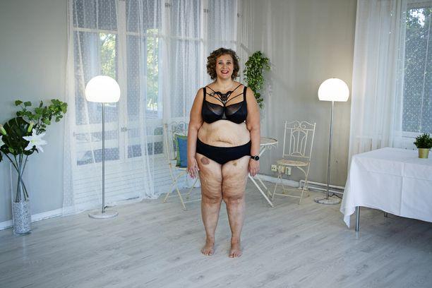 Marjo 15,5 kilon painonpudotuksen jälkeen.