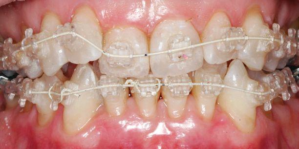 Hoidon aikana: Six Month Smiles -oikomishoidossa hampaisiin asennetaan kiinnikkeet, joihin kiinnitetään hampaita suoristava metallilanka.