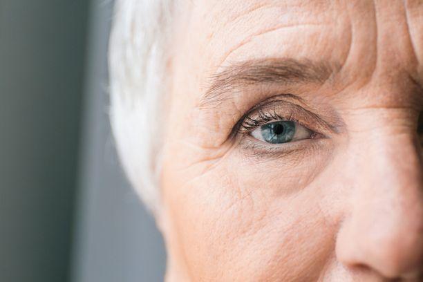Verkkokalvon valtimotukos aiheuttaa kivuttoman näönmenetyksen toisesta silmästä.