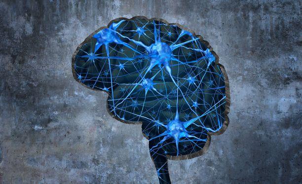 Pieni pelihetki voi auttaa tutkijoita ymmärtämään aivojen toimintaa entistä paremmin.