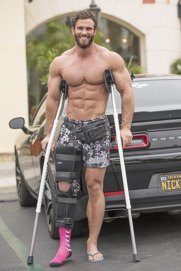 Australialainen kehonrakentaja Calum Von Moger on edelleen toipilaana, ja koko hänen jalkansa on paketissa.