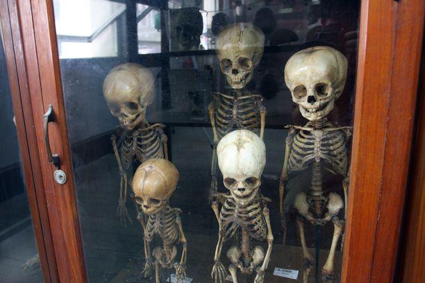 Lääketieteellisestä museosta löytyy esimerkiksi luurankoja.